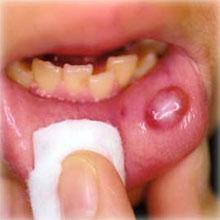歯茎 に 水疱